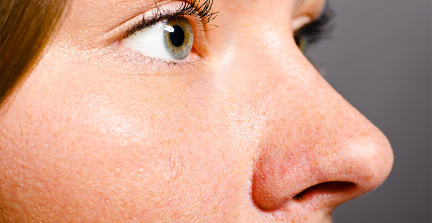 How To Reduce The Pore Size On Your Nose True Skin Care Center
