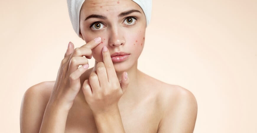 Most Horrific Home Acne Remedies